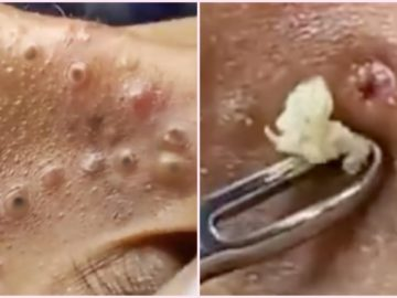 pimple popping Archives - blackhead popping