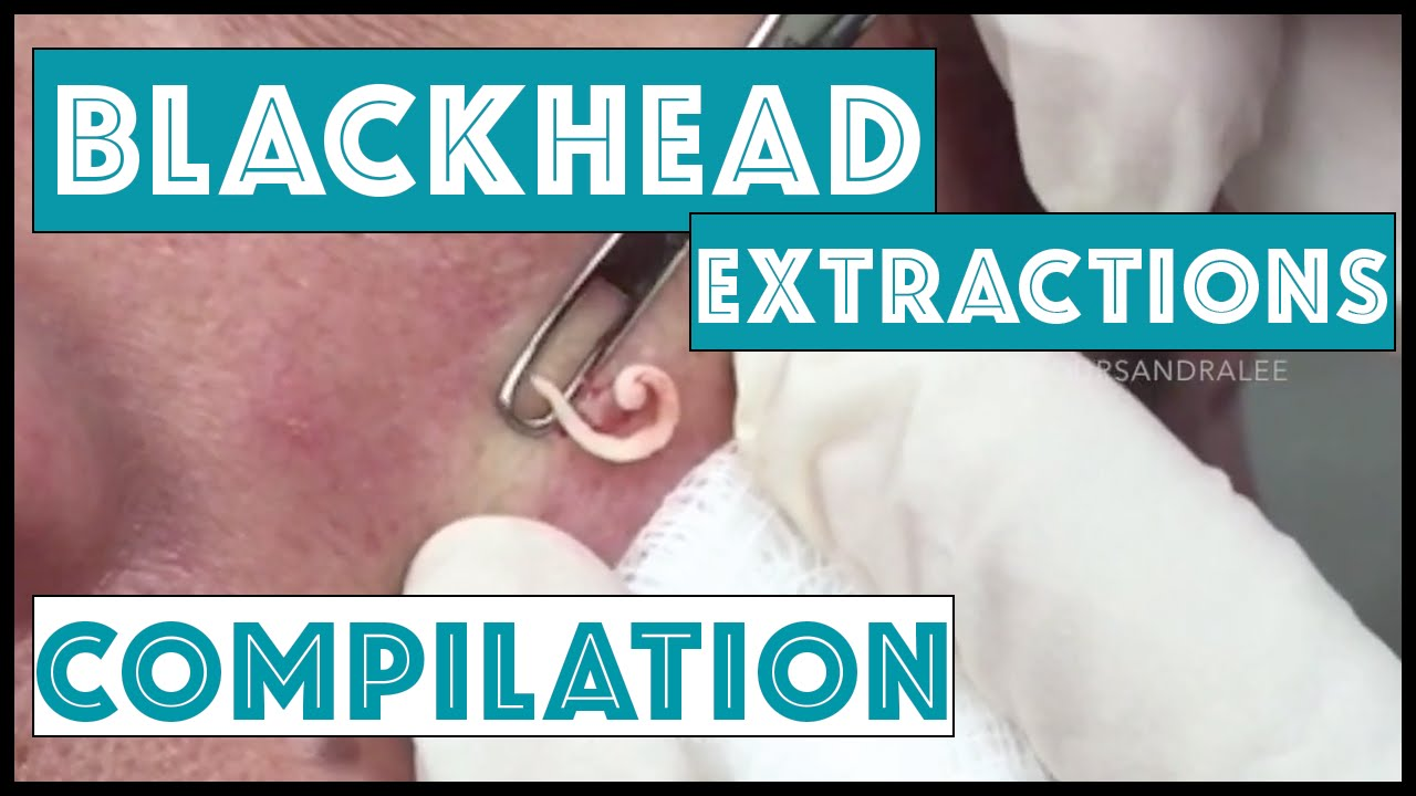 Long and Satisfying Blackhead Extractions: A Dr Pimple