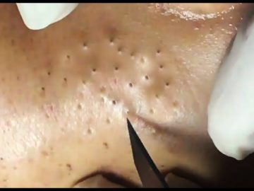 blackhead popping - blackheads Removal popping videos